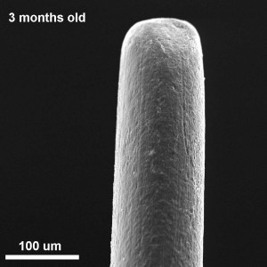 sem analysis of 3 month old toothbrush bristle