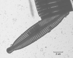 tem analysis of a diatom